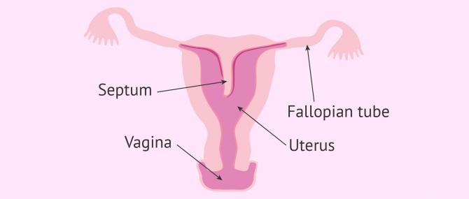 Septate uterus diagram