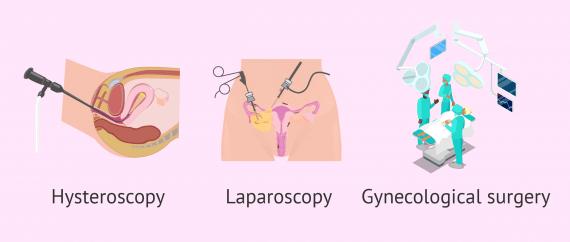 Surgical procedures for uterine anomalies