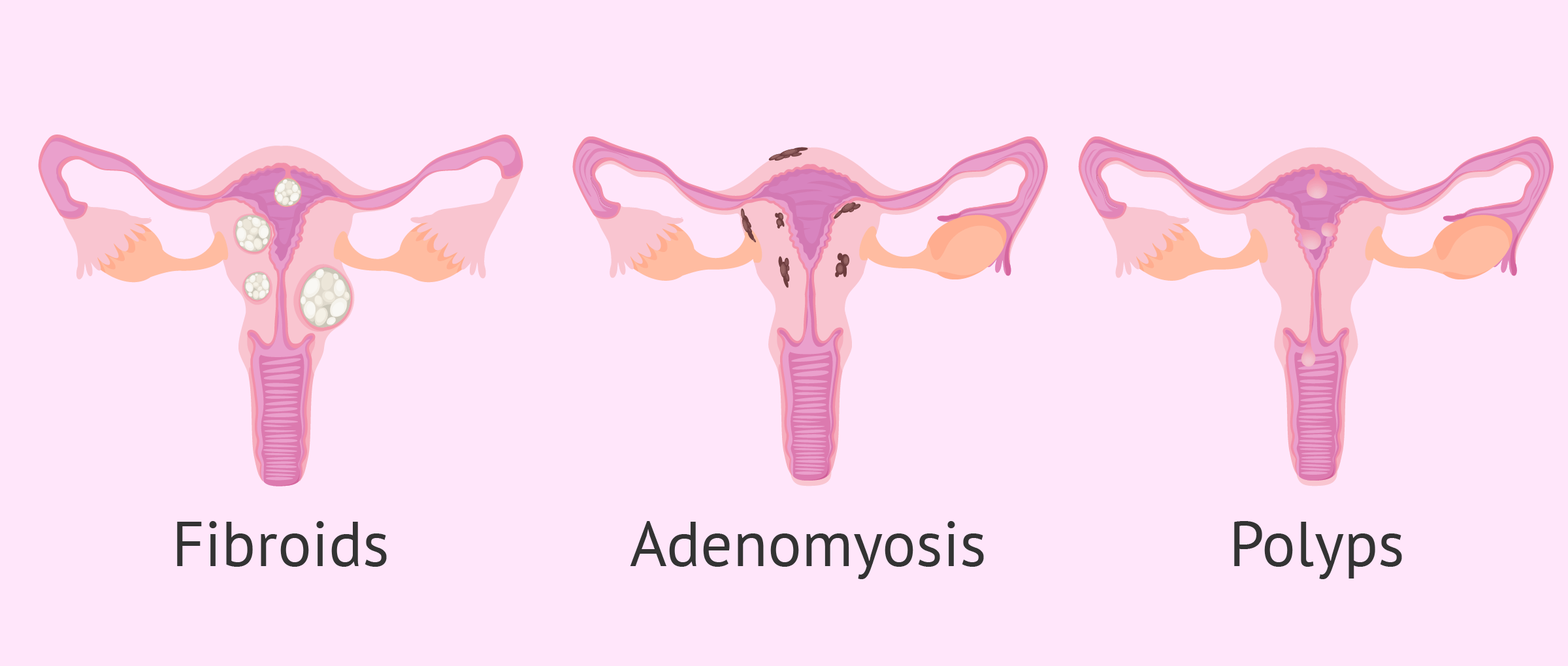 Tumors of the uterus