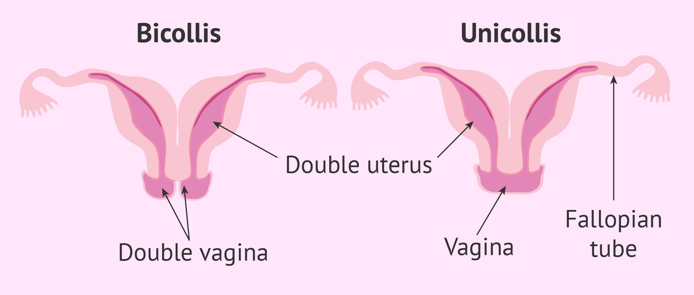 Types of uterine didelphys