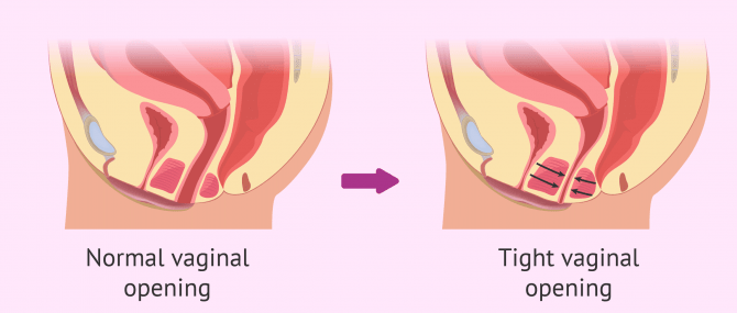 What is Vaginismus? – Causes, Symptoms & Treatment