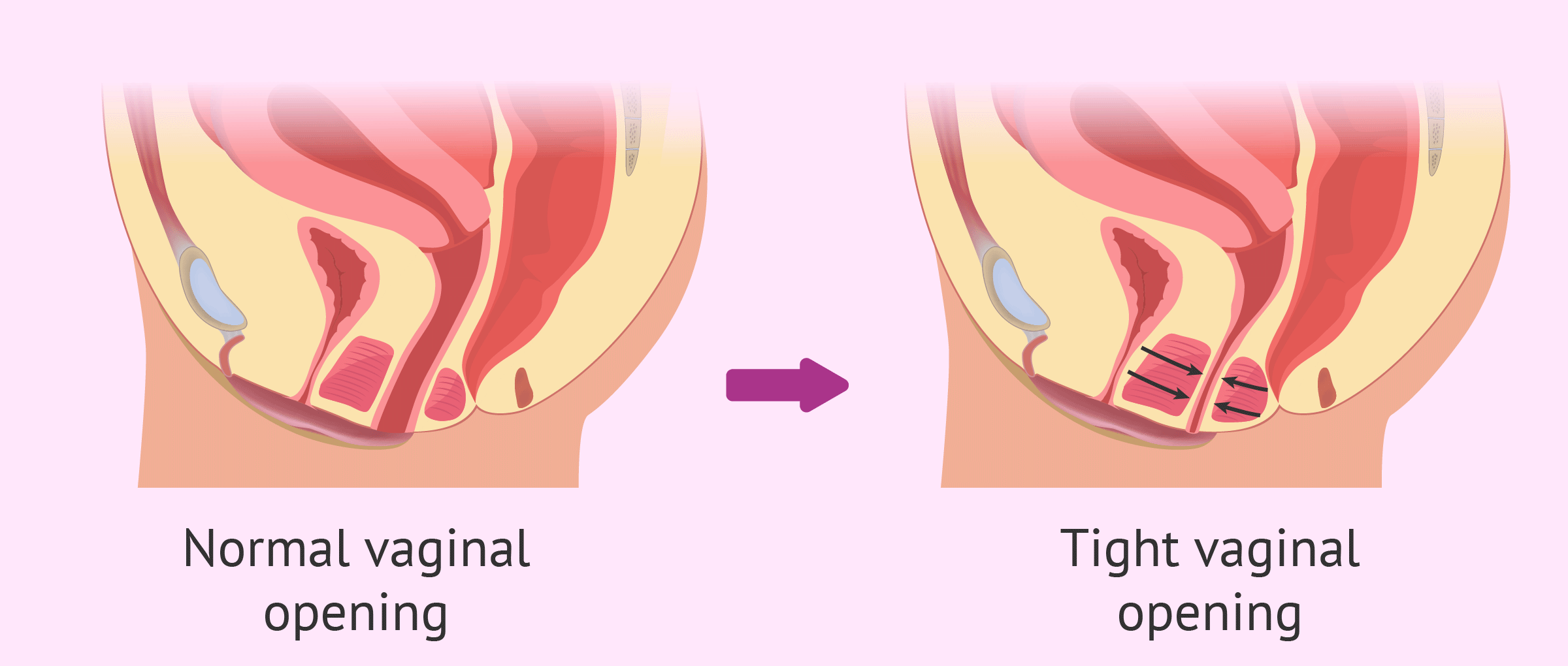 Normal vaginal opening vs. with vaginismus
