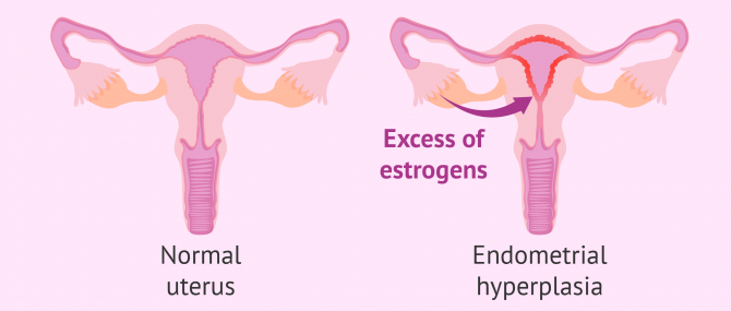 What is endometrial hyperplasia?