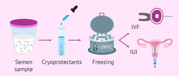 Imagen: Frozen semen