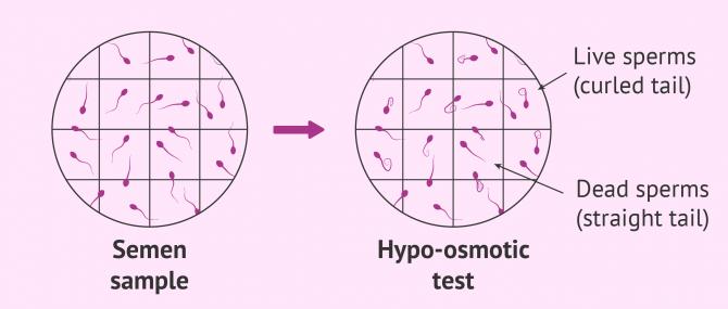 Sperm vitality test