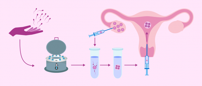 How Does IVF with Donor Sperm Work? – Cost & Success Rates