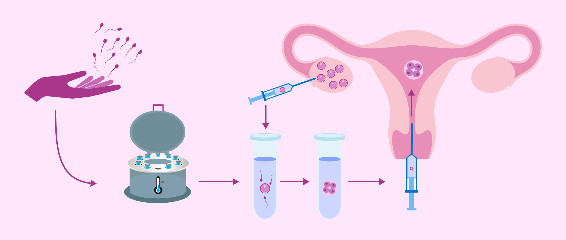 Process of IVF with donor sperm