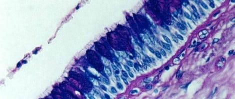 Diagnosis Primary Ciliary Dyskinesia