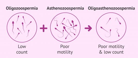 Oligoasthenospermia diagnosis