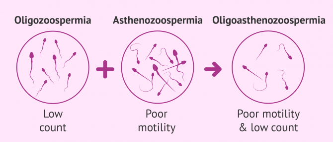 What Is Oligoasthenozoospermia? – Causes & Treatment