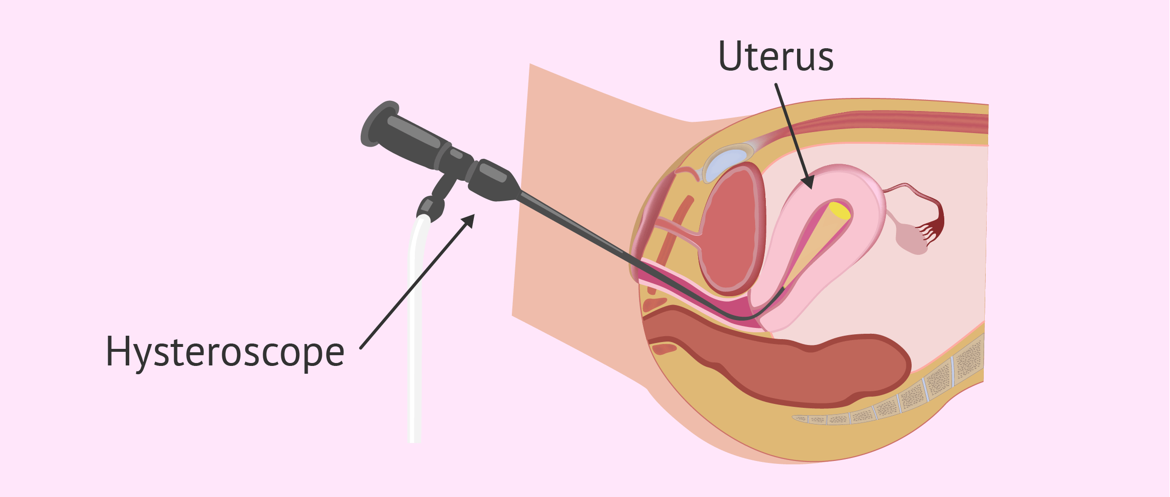 Observe uterine cavity by hysteroscopy