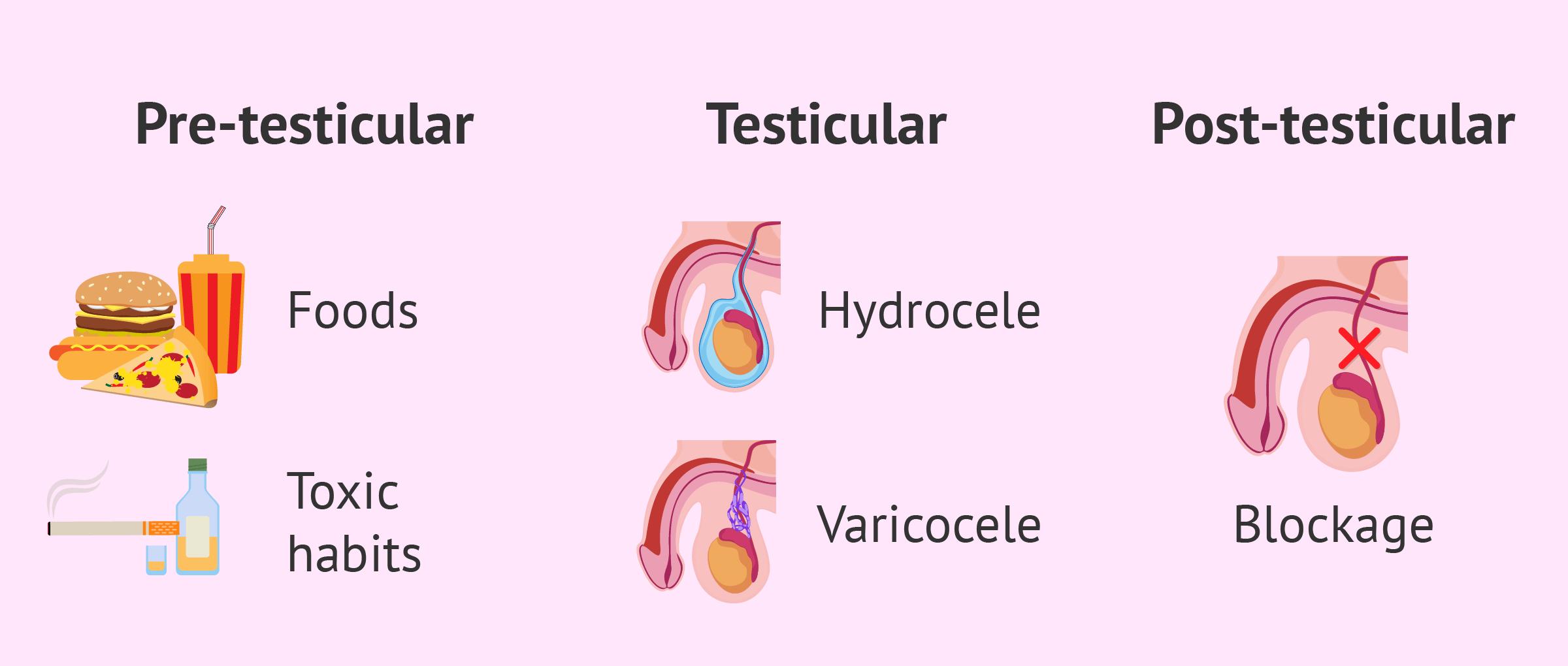 Causes of oligospermia