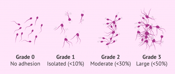 Degrees of sperm agglutination