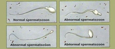 Spermatozoa with alterations