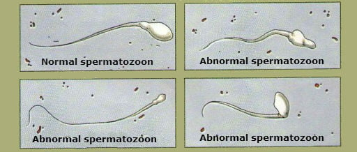 Spermatozoa with alterations
