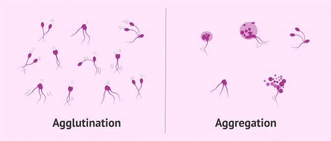 Imagen: Methods to solve agglutination