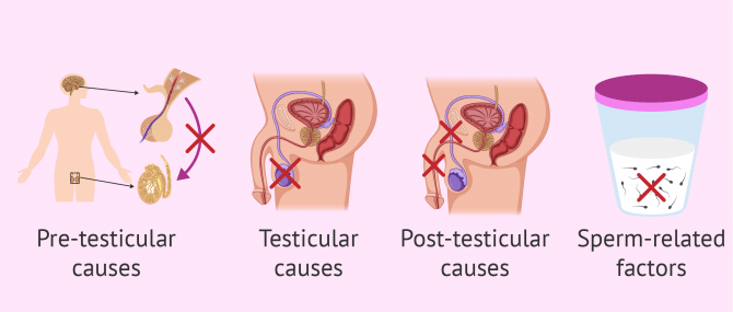 Imagen: Main Causes in Male Sterility