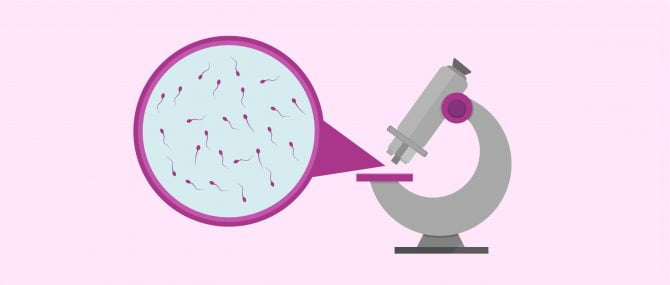 Imagen: Seminogram to analyse the quality of spermatozoa