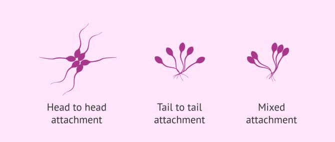 Imagen: Types of agglutination in sperm cells
