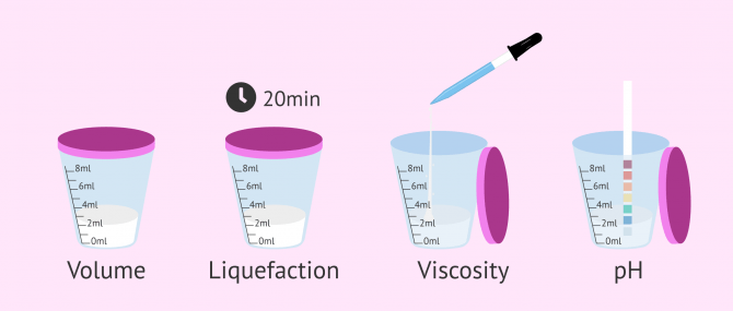 Imagen: Macroscopic semen study
