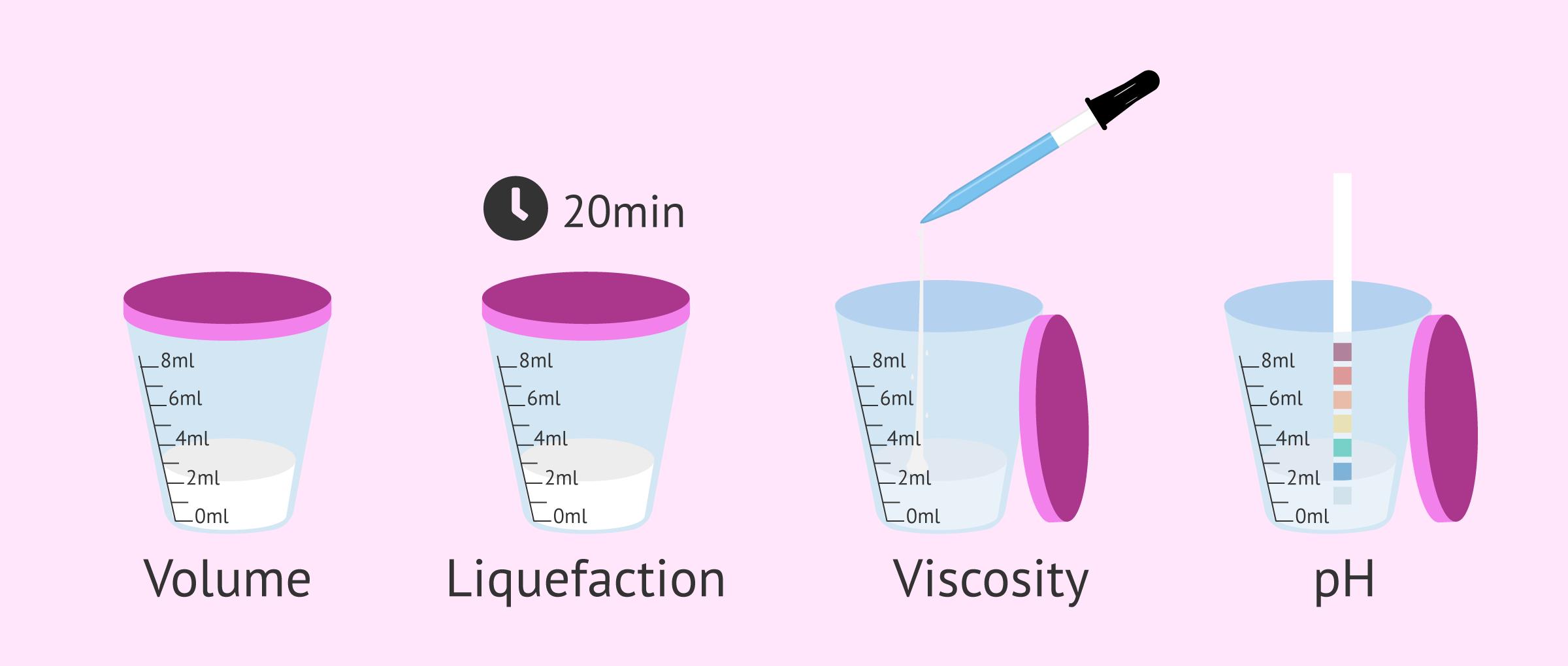 Macroscopic semen study