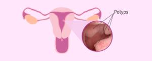 Location where polyps appear