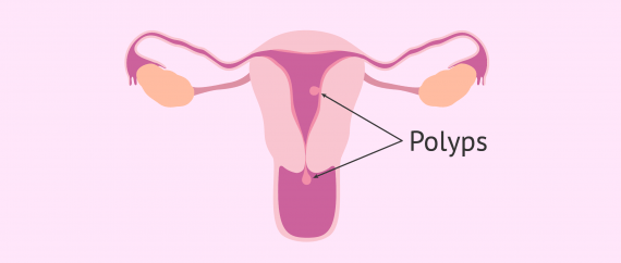 Location where polyps appear