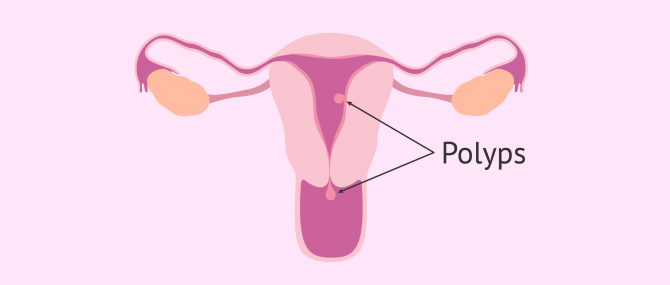 Uterine Polyps & Cancer Risk – Can They Become Cancerous?