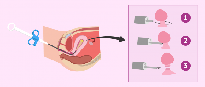 Polypectomy procedure