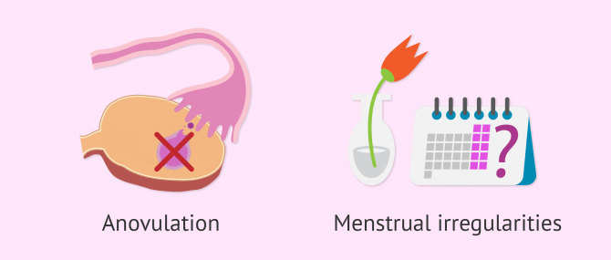 Infertility and polycystic ovaries