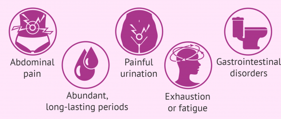 Symptoms of endometriosis