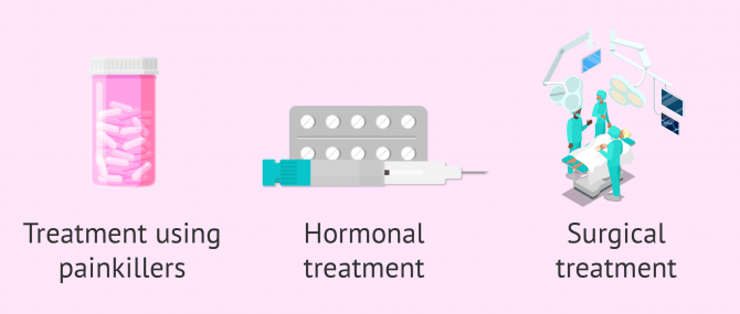Treatment options for endometriosis