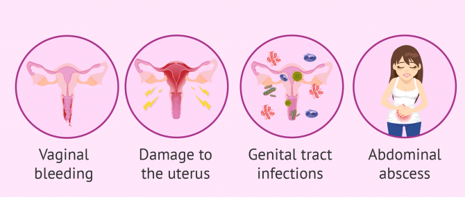 Imagen: Abortion risks and side effects
