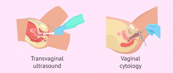 Gynecological tests to check if a woman is fertile
