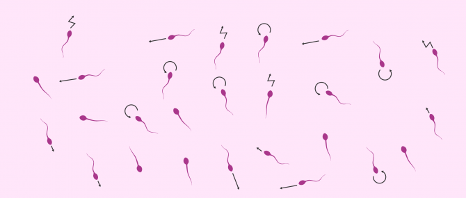 How Is Sperm Motility Examined?