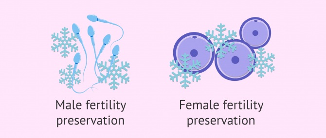 Fertility Preservation – Cost & Options for Retaining Your Fertility