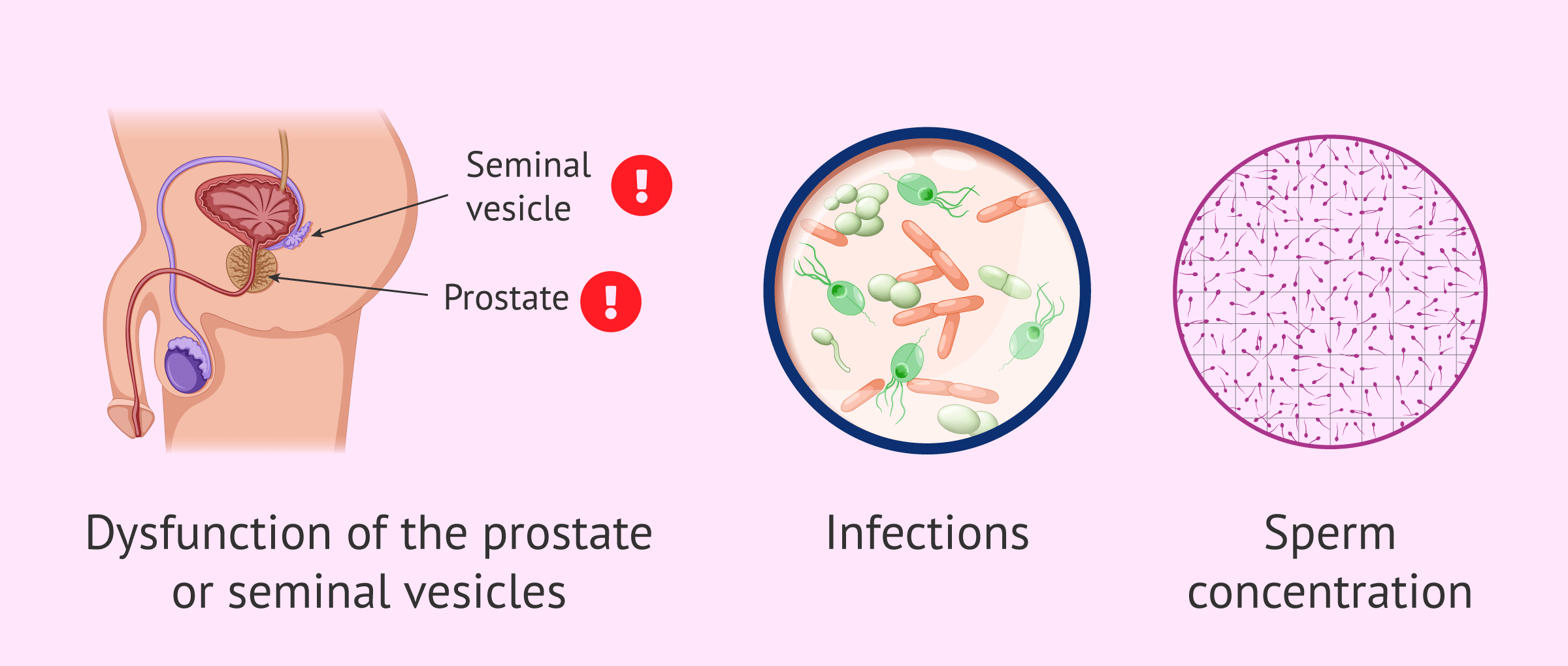 Causes of variation in sperm consistency