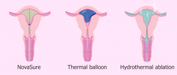 What Is Endometrial Ablation Procedure Recovery