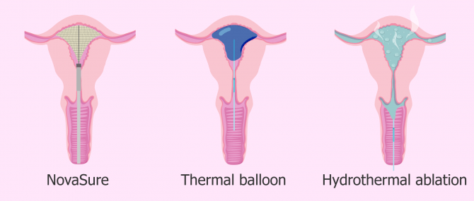 Main thermal endometrial ablation methods