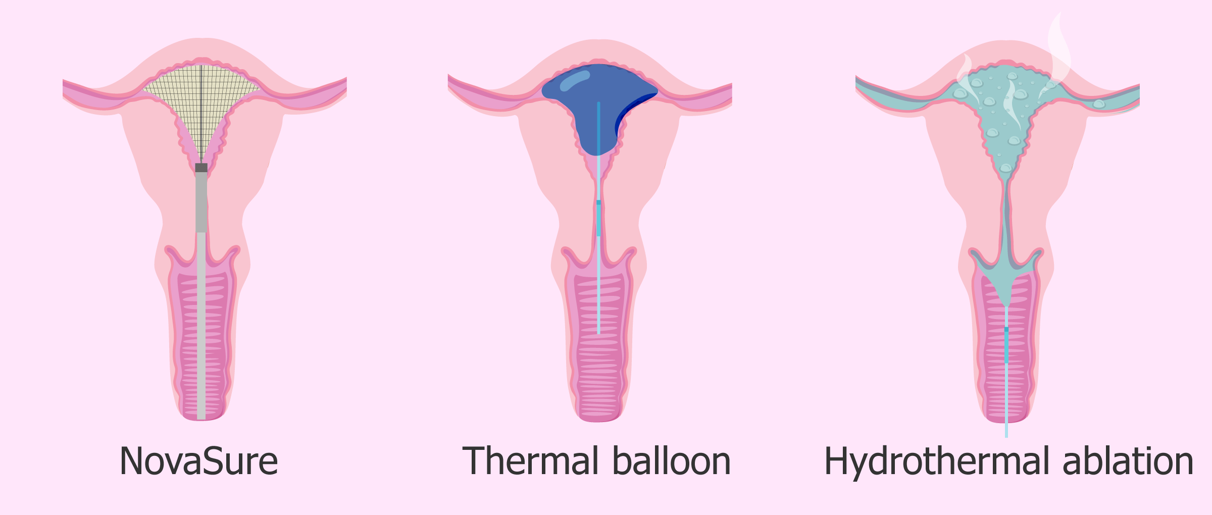 Endometrial ablation: definition, procedure and chances of pregnancy
