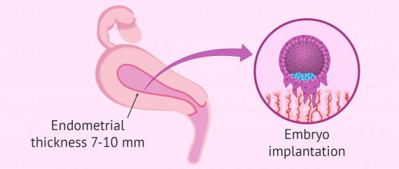 Endometrial receptivity and embryo implantation