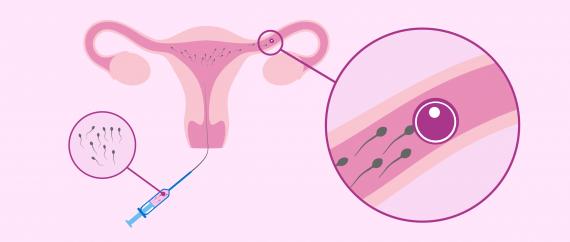 Imagen: Natural egg insemination
