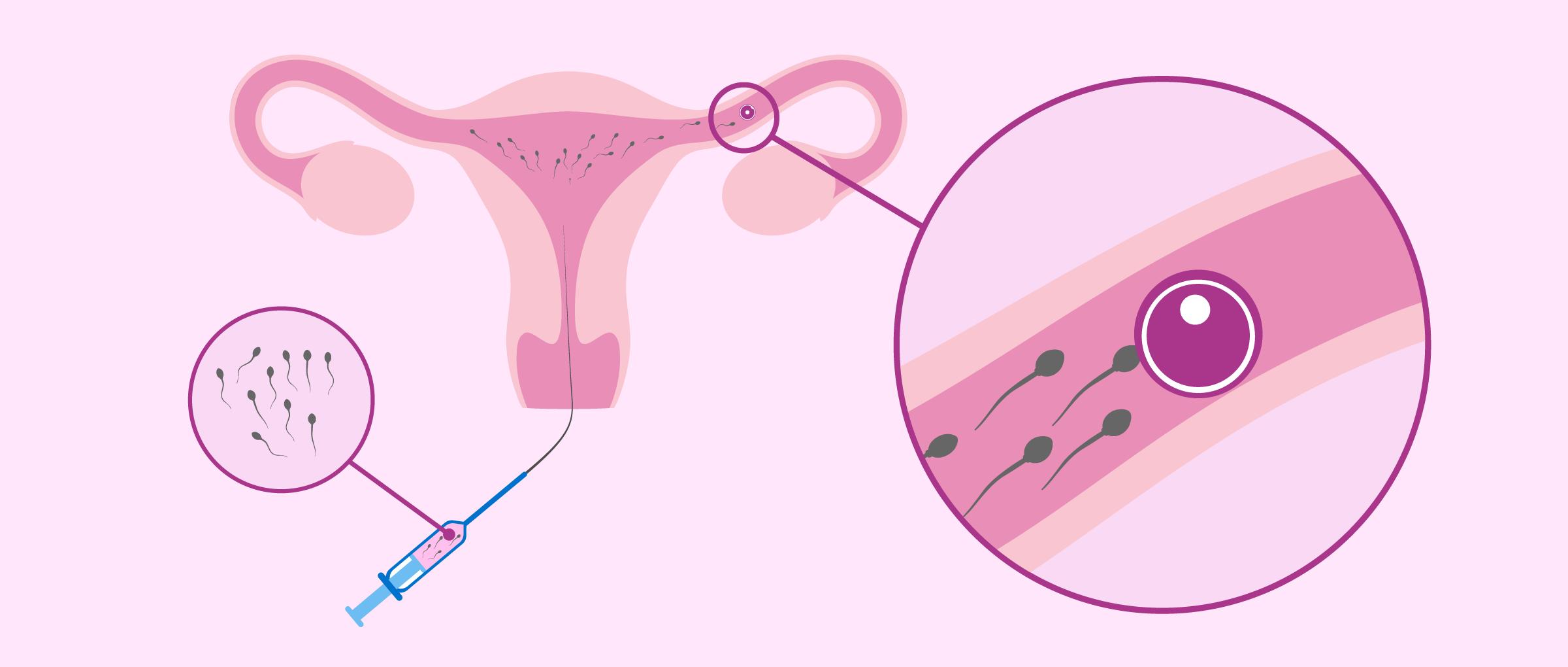 The Intrauterine Insemination (IUI) Process Step by Step