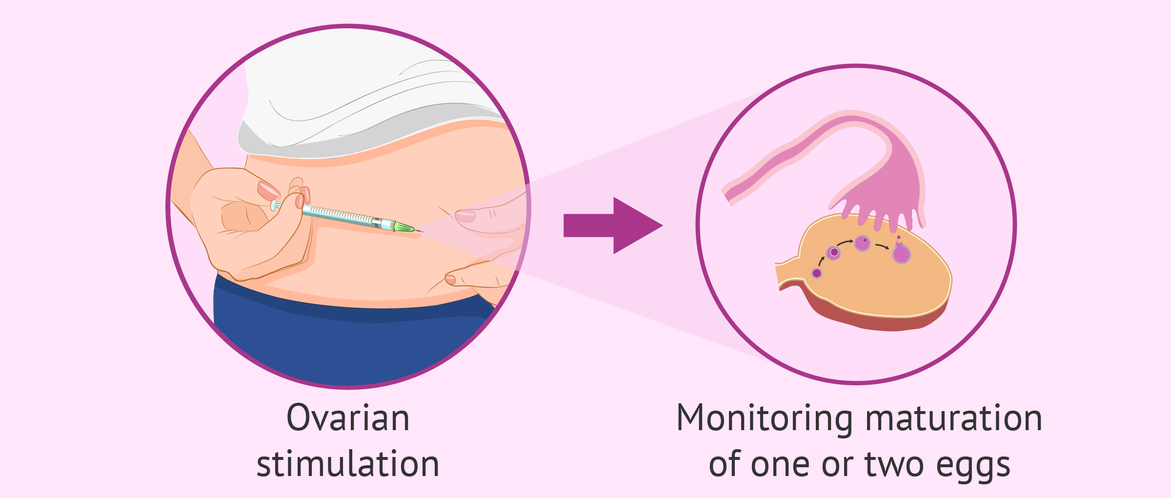 Ovarian stimulation to monitor egg maturation process