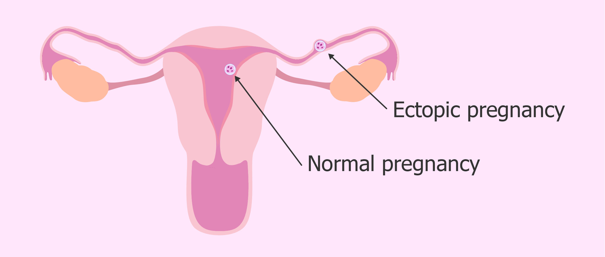 Ectopic pregnancy after embryo transfer