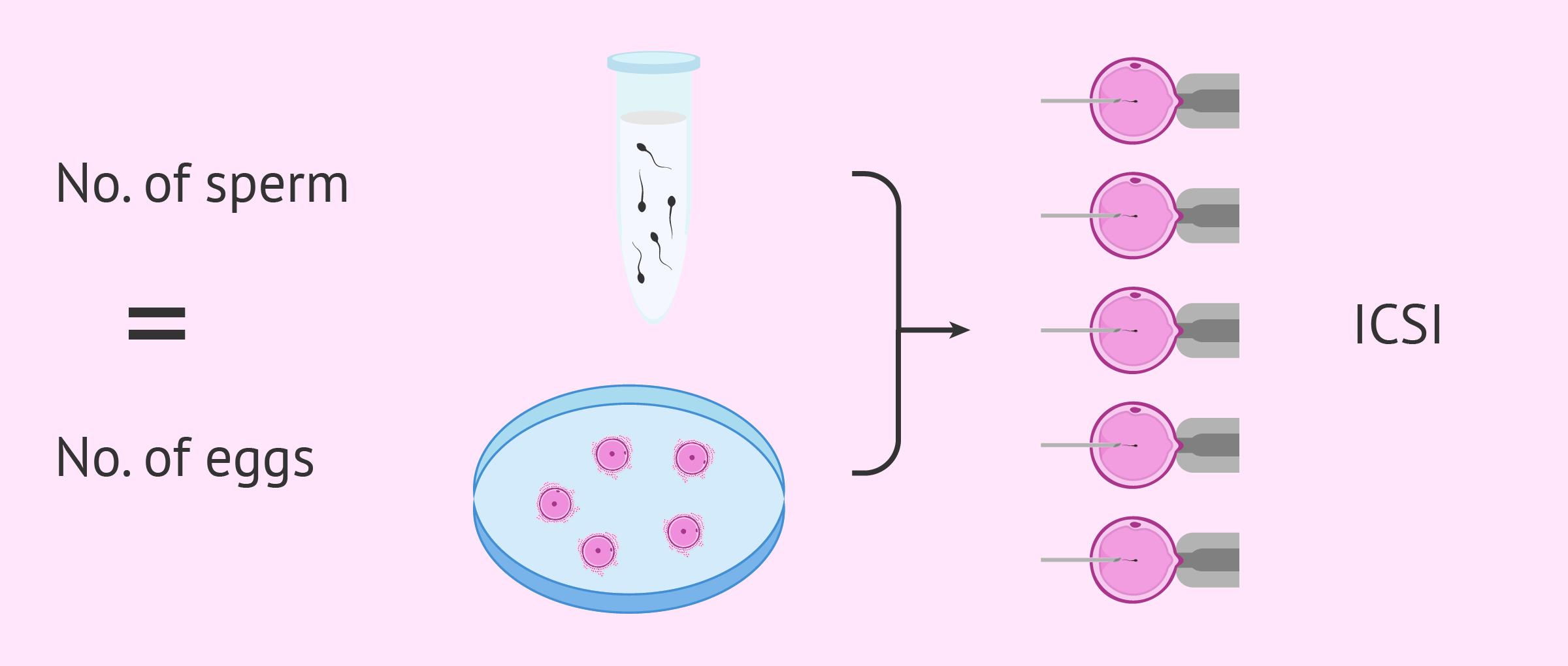 Treating cryptozoospermia with ICSI