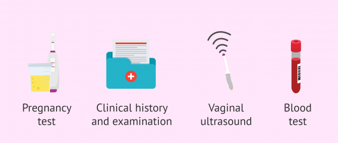 Imagen: Diagnostic tests for amenorrhea