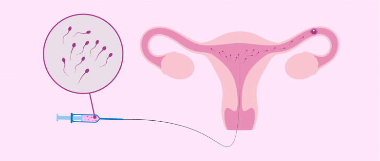 What Are Infertility Treatments?