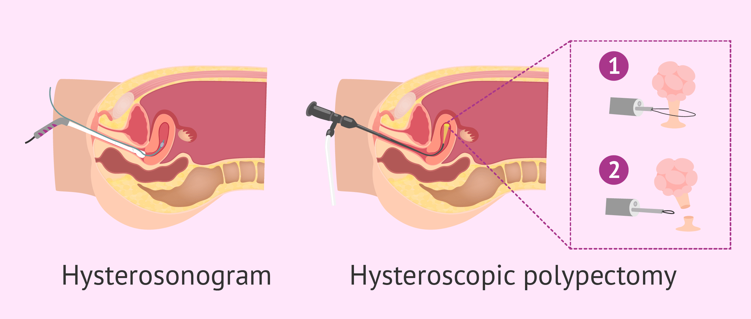 What are the dangerous polyps in the uterus