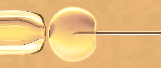 Assisted Reproductive Technology in Spain